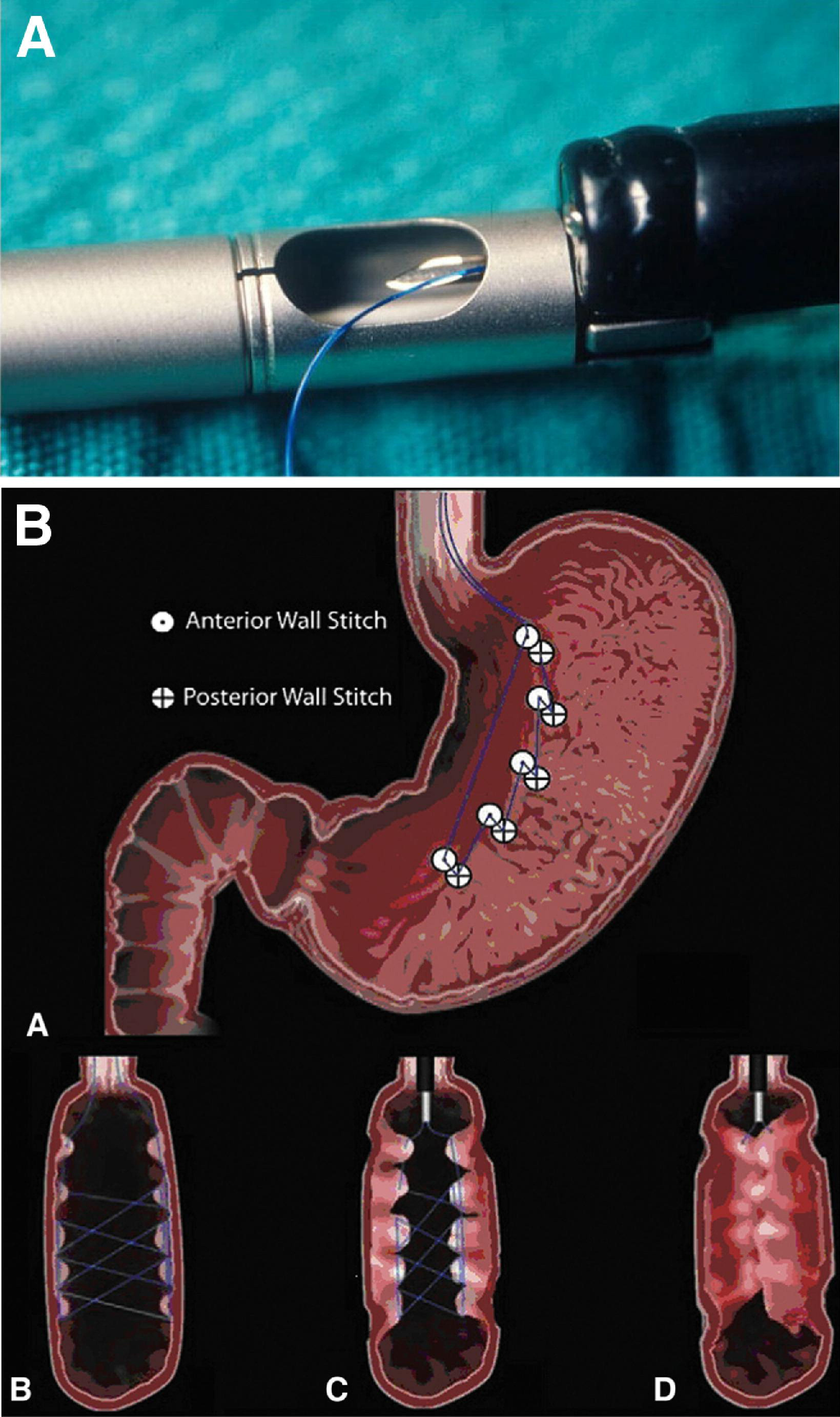 Endoscope Design: Endoscopic Options For The Treatment Of Obesity