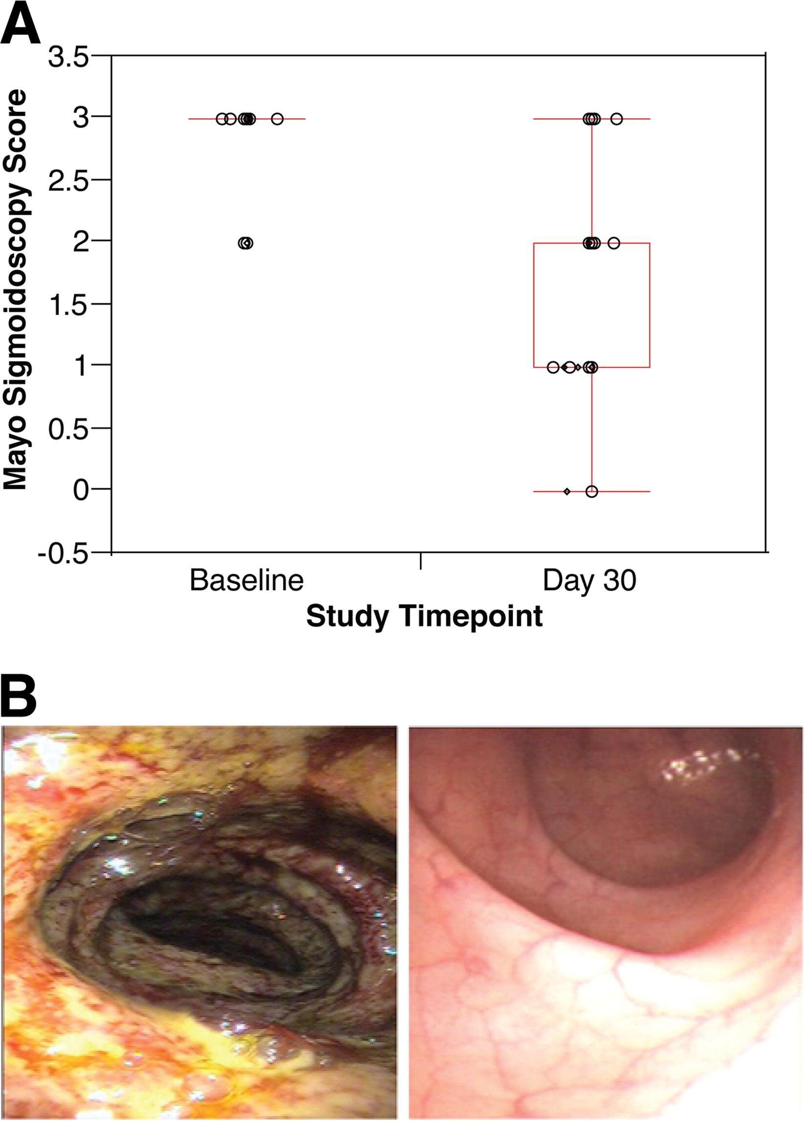 steroid-refractory severe ulcerative colitis what are the available treatment options