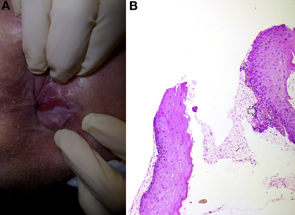 A Painful Perianal Lesion