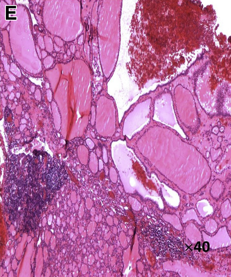 A Rare Hypervascular Mass in the Uncinate Process of the ...