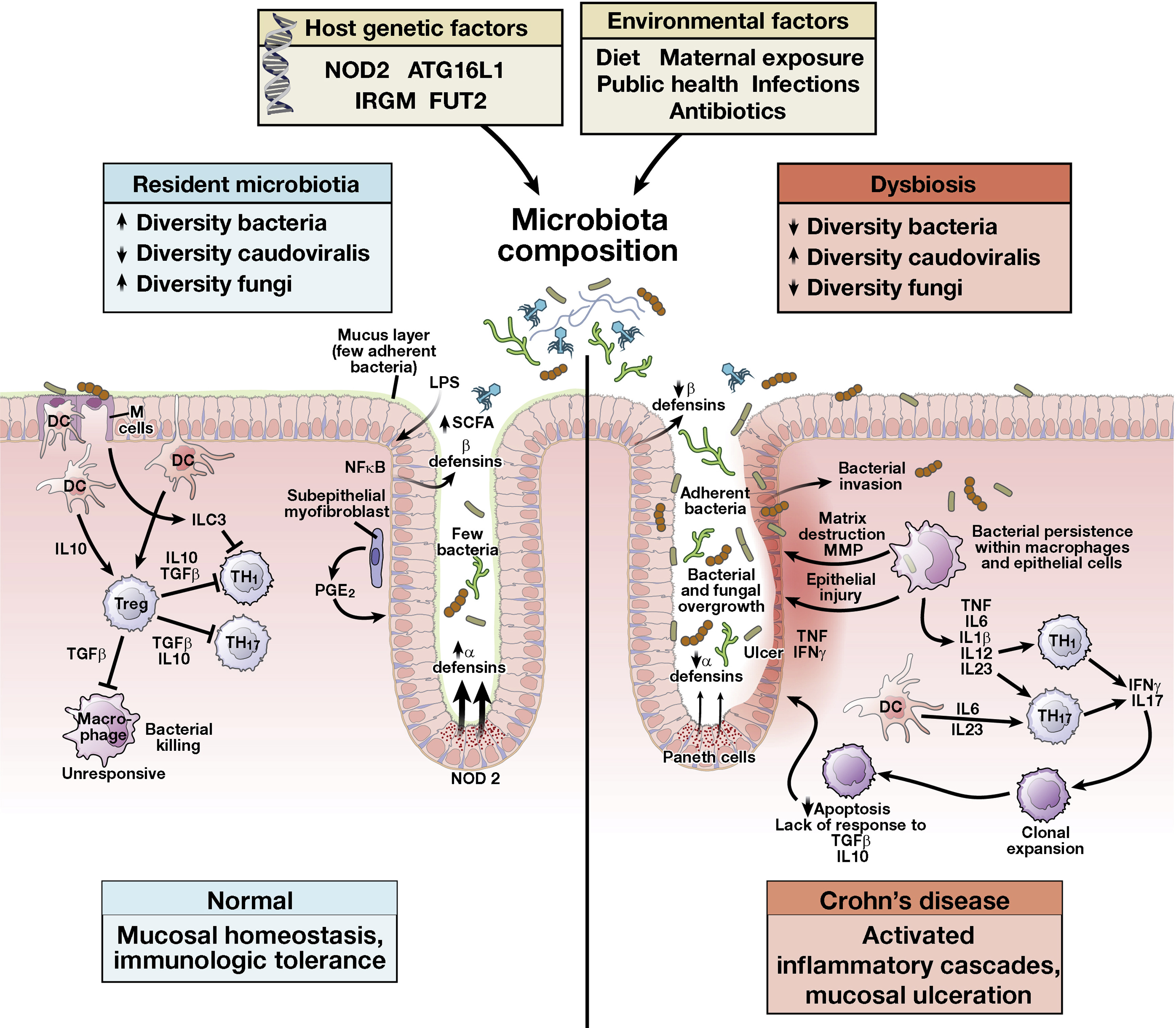 pathogenesis of inflammatory bowel disease poster Chronic diarrhea and belly pain could result from inflammatory bowel disease learn about ibd causes, diagnosis and treatment.